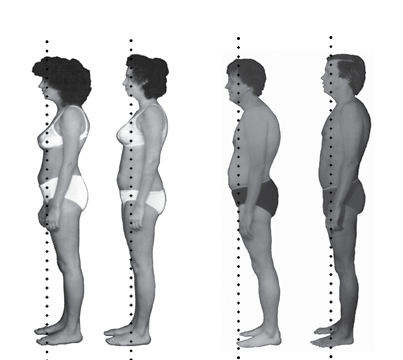 Rolfing Before and After Pics